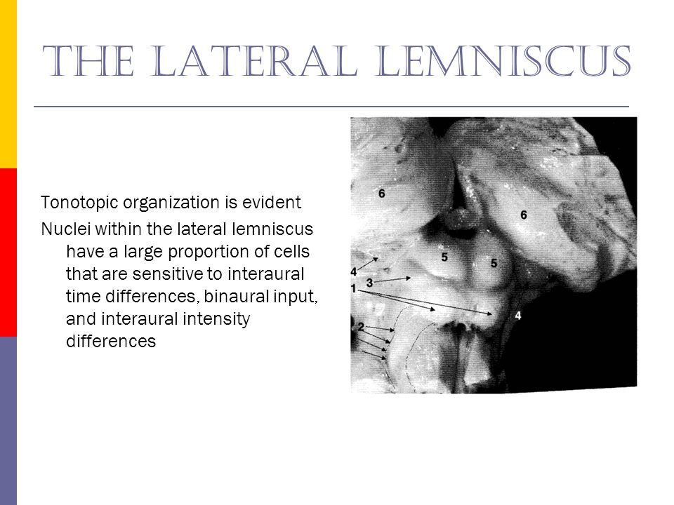 The lateral lemniscus Tonotopic organization is evident