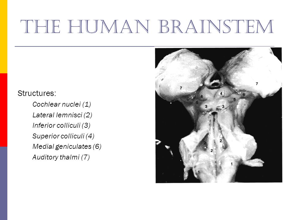 The human brainstem Structures: Cochlear nuclei (1)
