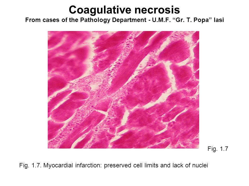 dating myocardial infarction histologically Acute myocardial infarction and perforated peptic ulcer disease with associated peritonitis are both  nonreciprocal and reciprocal dating violence and injury .