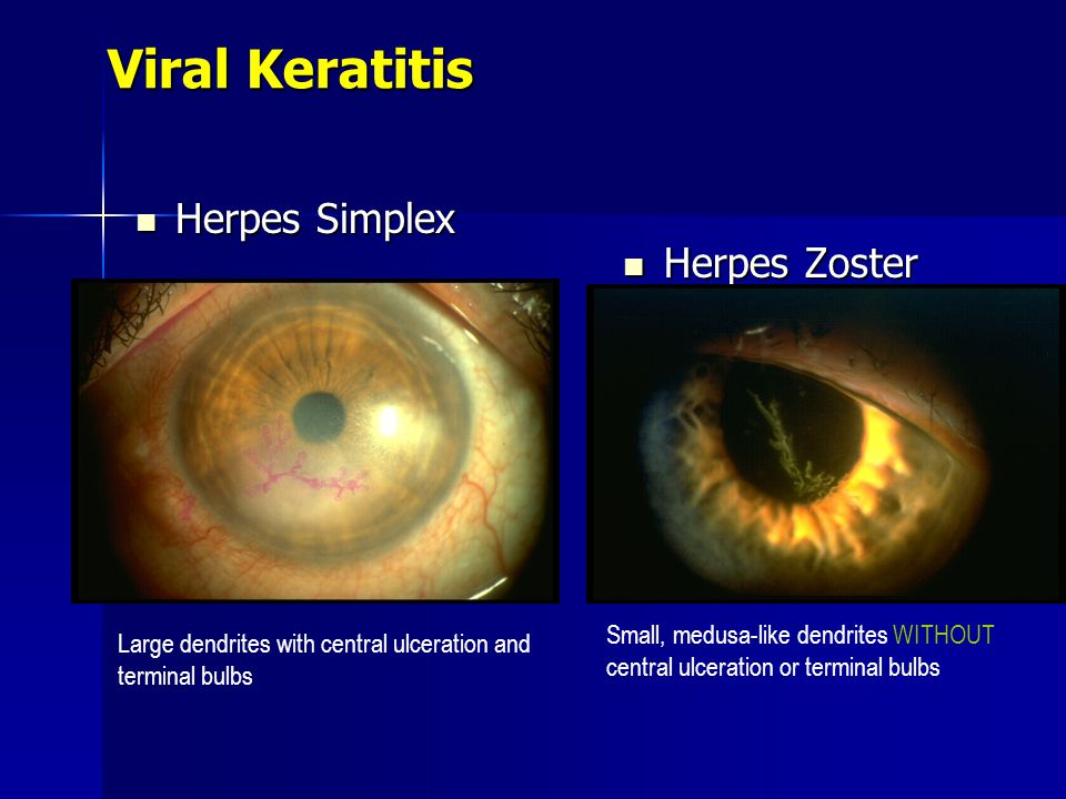 Herpes zoster ophthalmicus in children