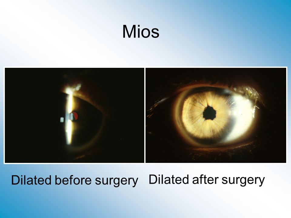 Mios Dilated before surgery Dilated after surgery