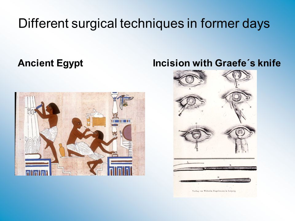 Different surgical techniques in former days
