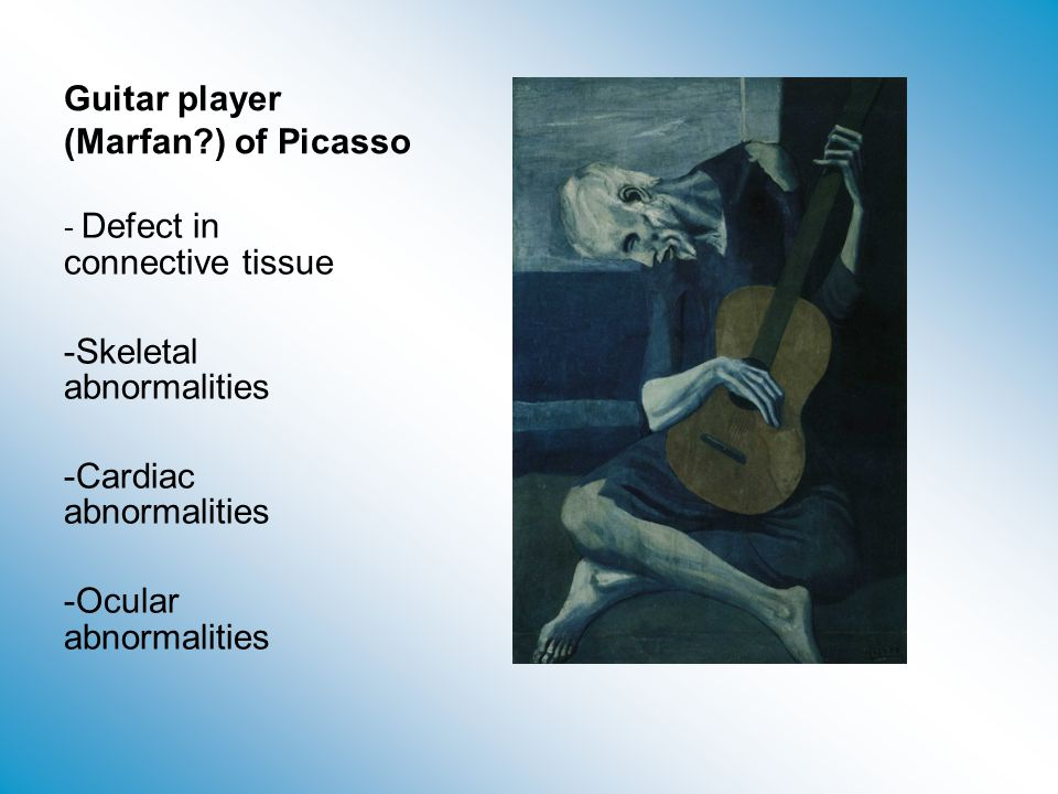 Guitar player (Marfan ) of Picasso