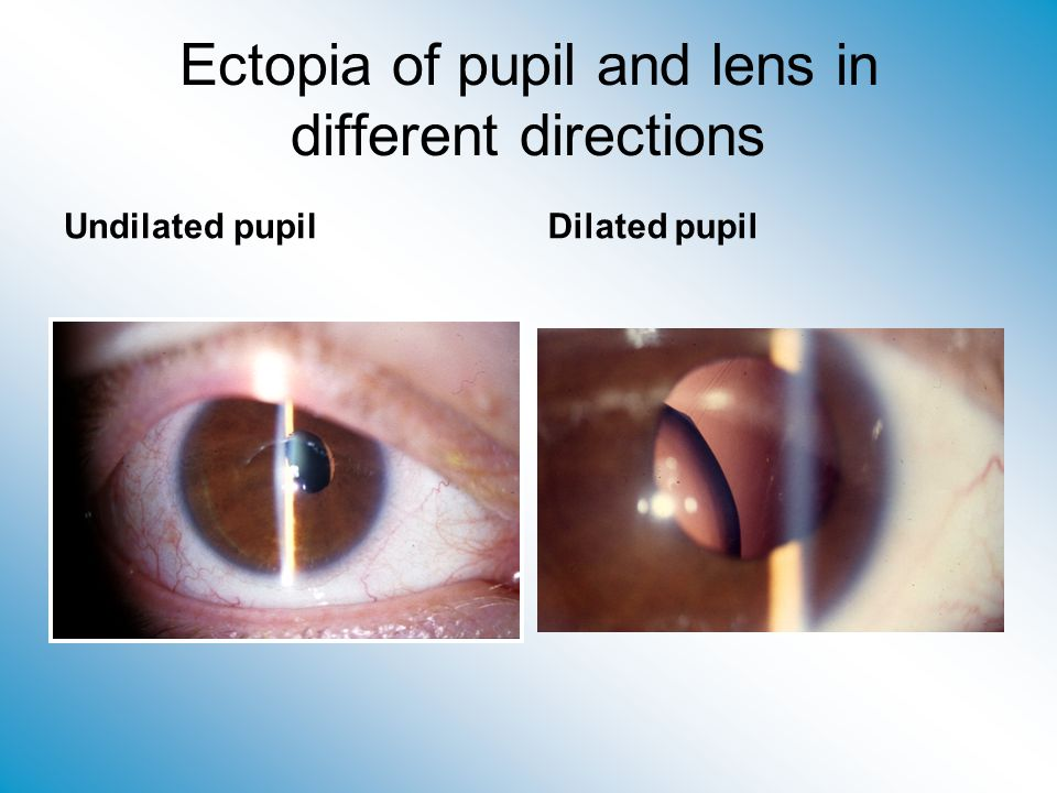 Ectopia of pupil and lens in different directions