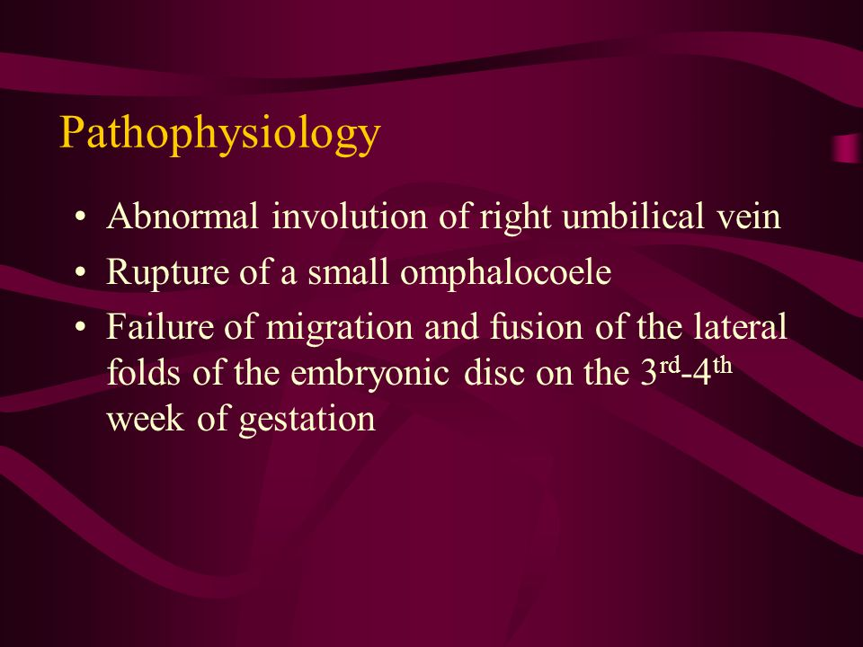 Pathophysiology Abnormal involution of right umbilical vein