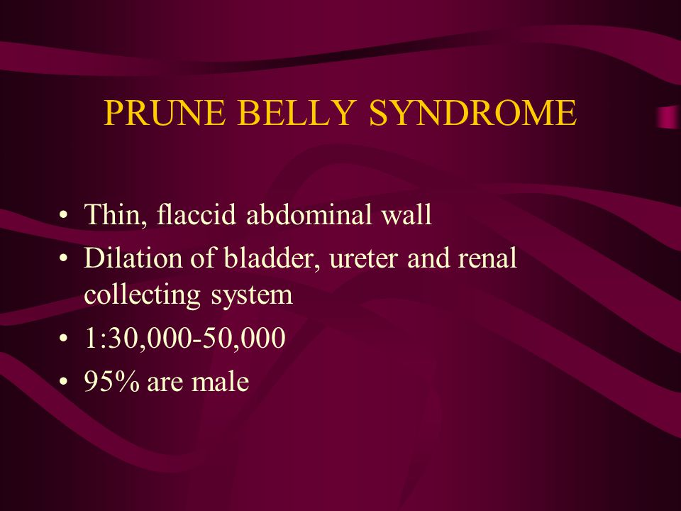 PRUNE BELLY SYNDROME Thin, flaccid abdominal wall