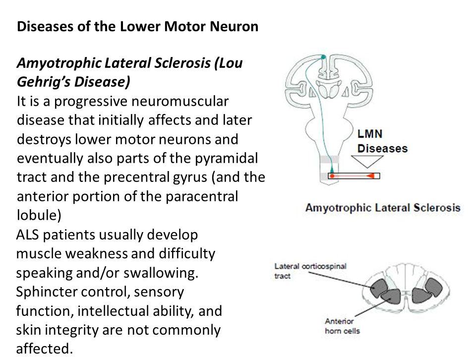 upper and lower motor neurons How can the answer be improved.