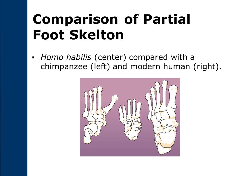 Comparison of Partial Foot Skelton