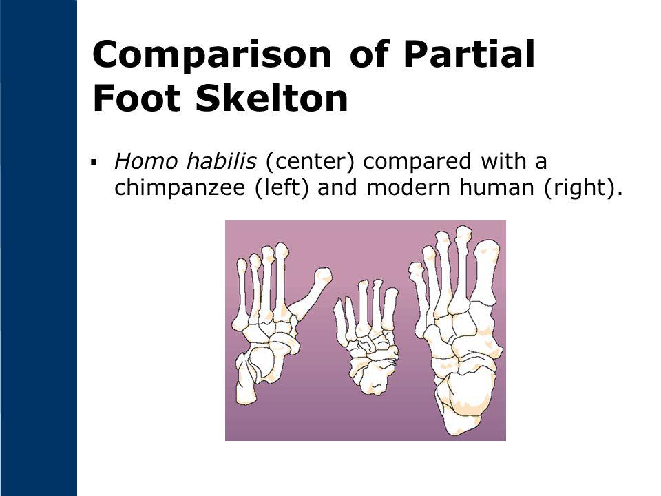 Comparison of Partial Foot Skelton