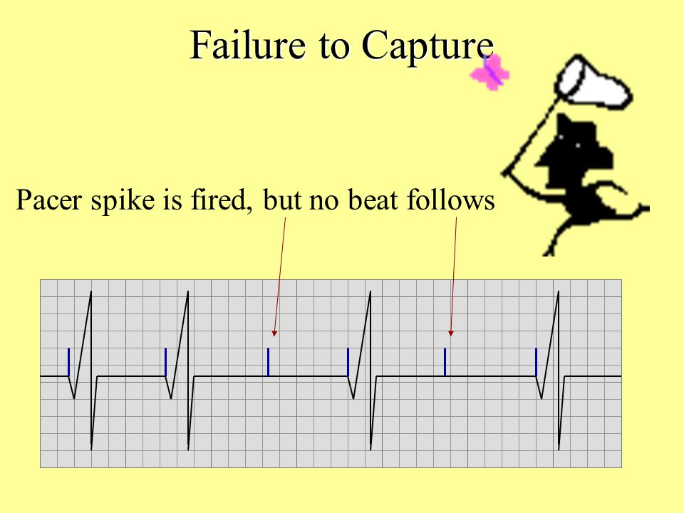 Failure to Capture Pacer spike is fired, but no beat follows