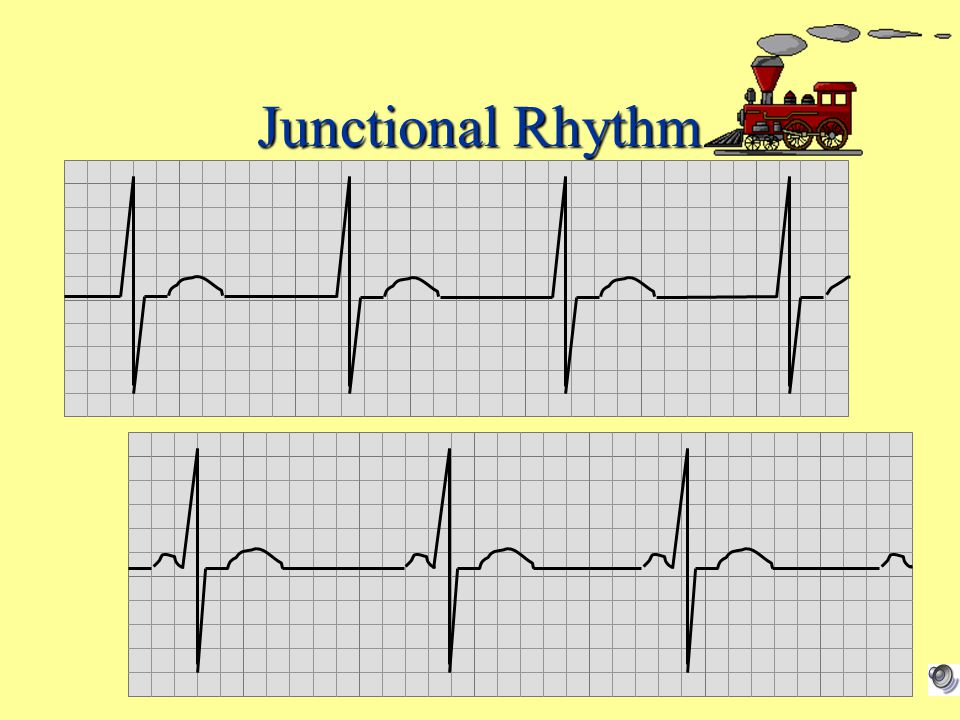 Junctional Rhythm No P wave or PR < .12