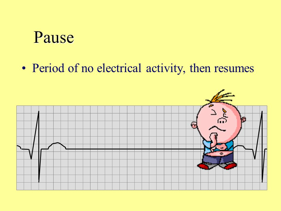 Pause Period of no electrical activity, then resumes