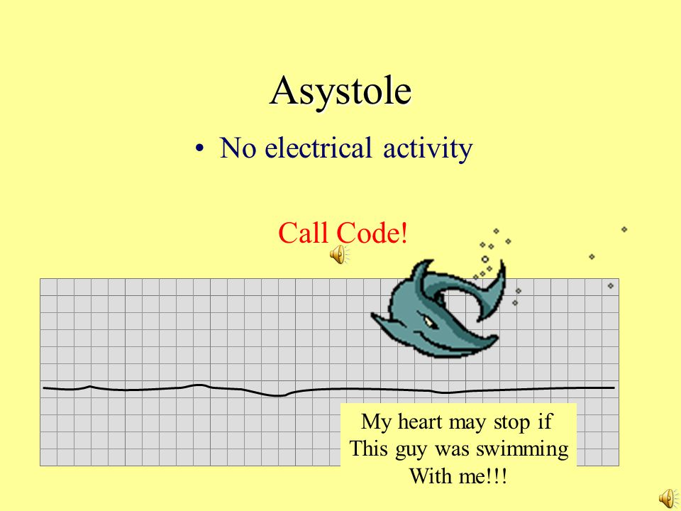 Asystole No electrical activity Call Code! My heart may stop if