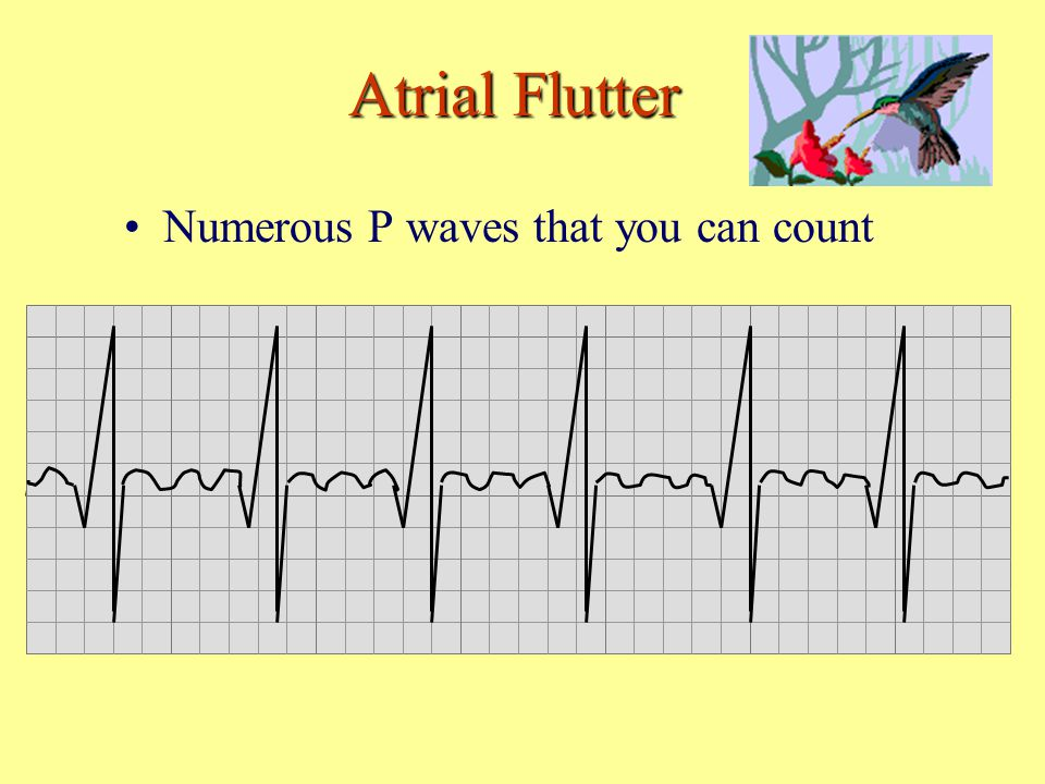 Atrial Flutter Numerous P waves that you can count