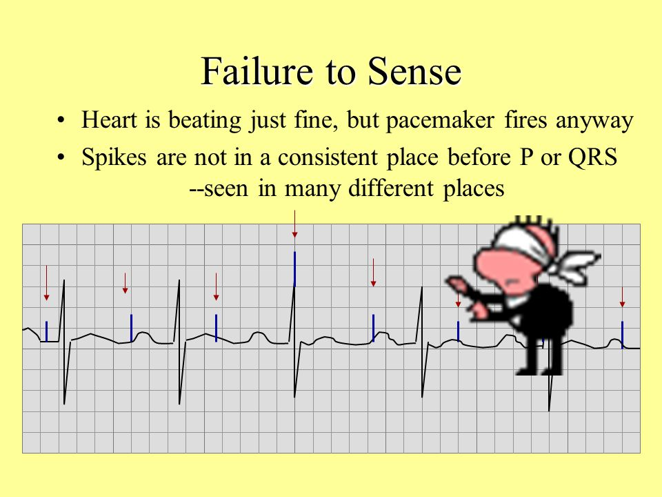 Failure to Sense Heart is beating just fine, but pacemaker fires anyway.