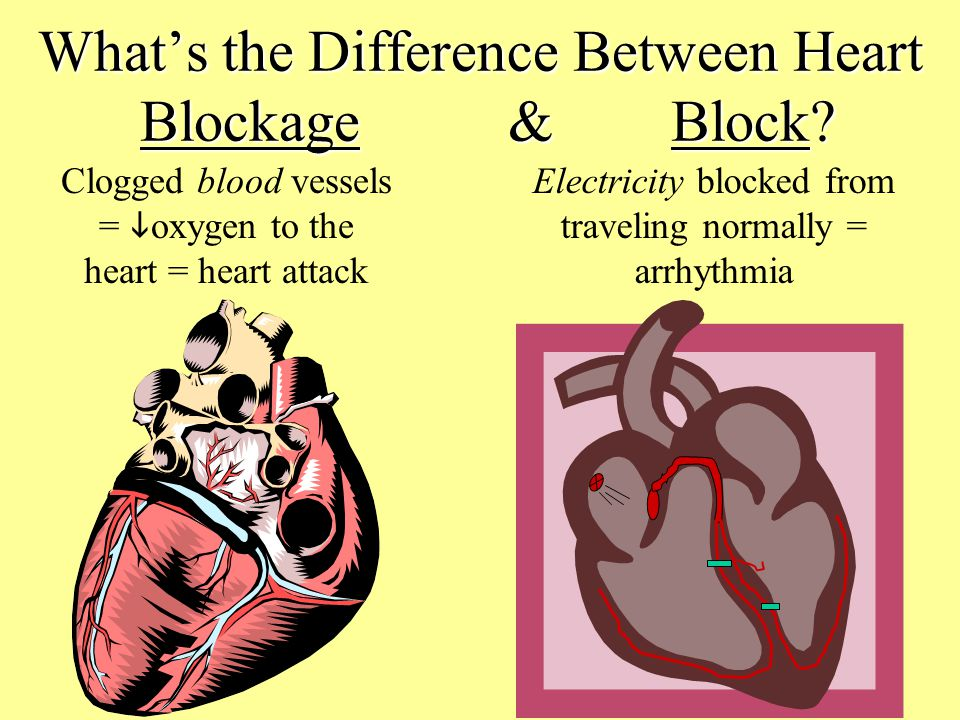 What's the Difference Between Heart Blockage & Block