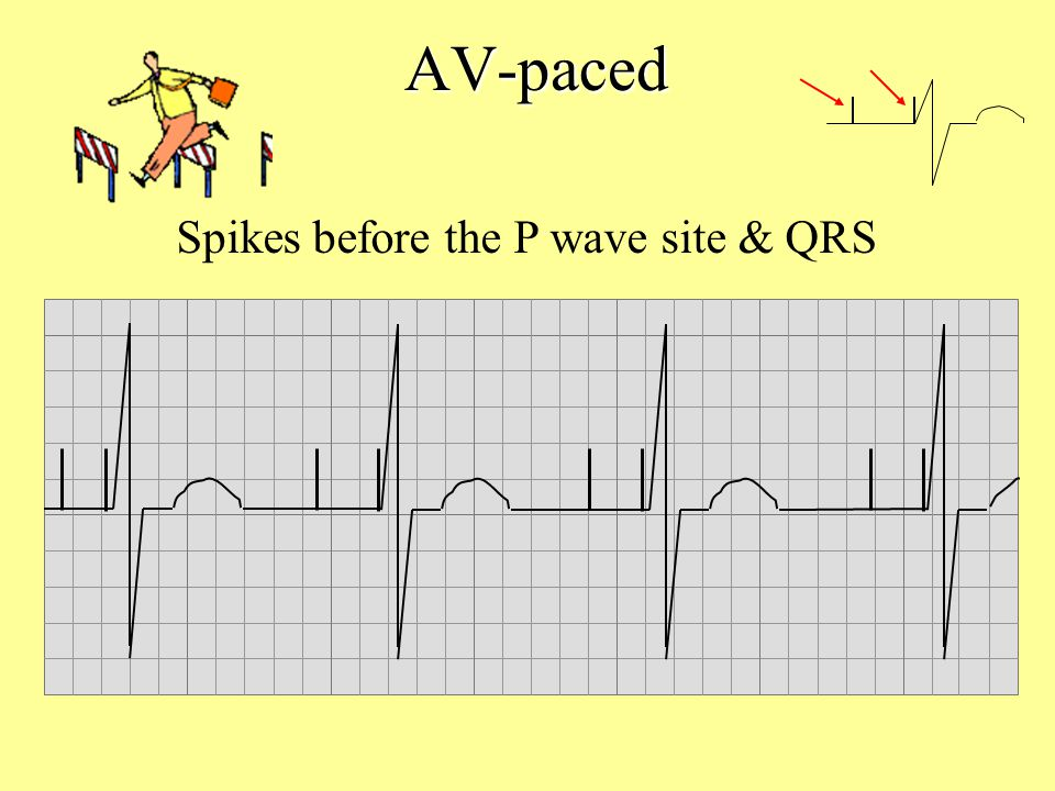 Spikes before the P wave site & QRS