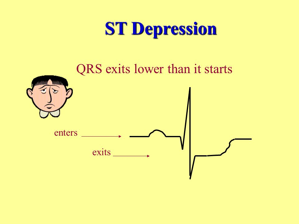 QRS exits lower than it starts