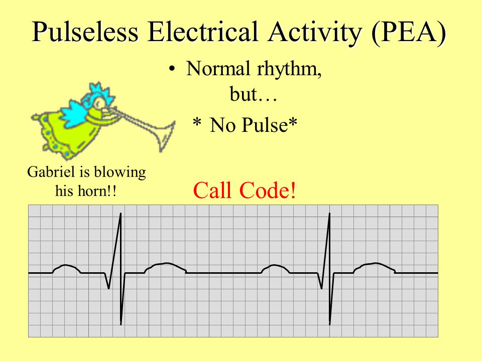 Pulseless Electrical Activity (PEA)