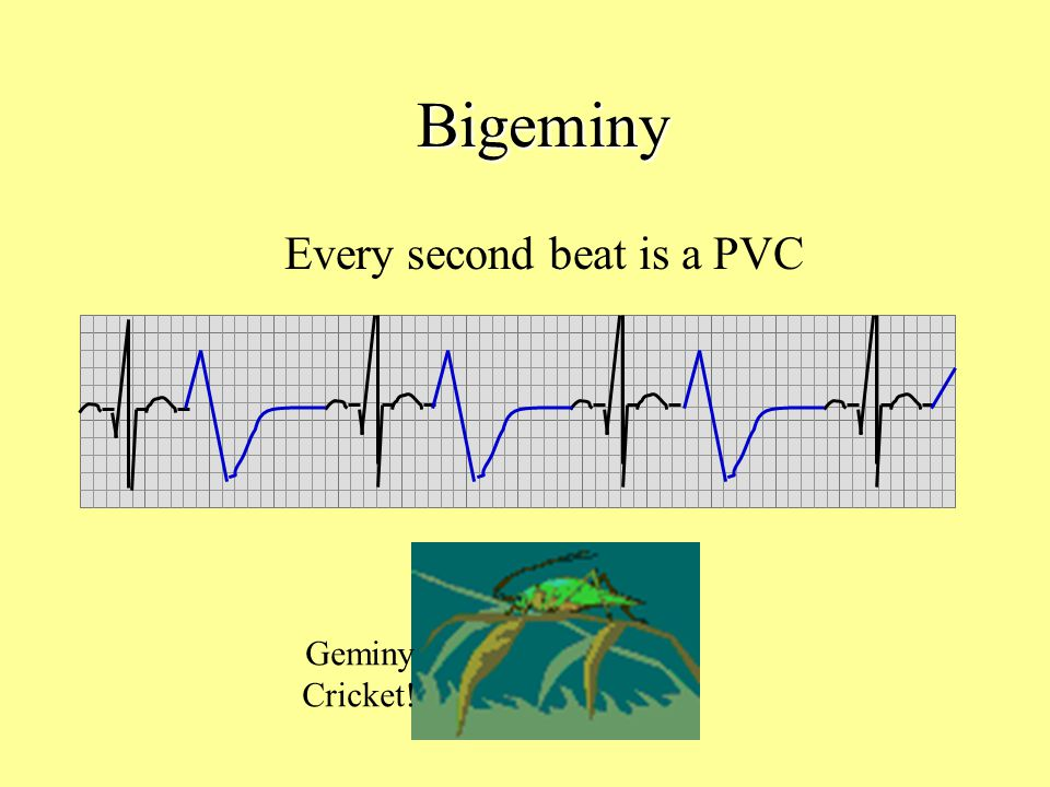 Every second beat is a PVC