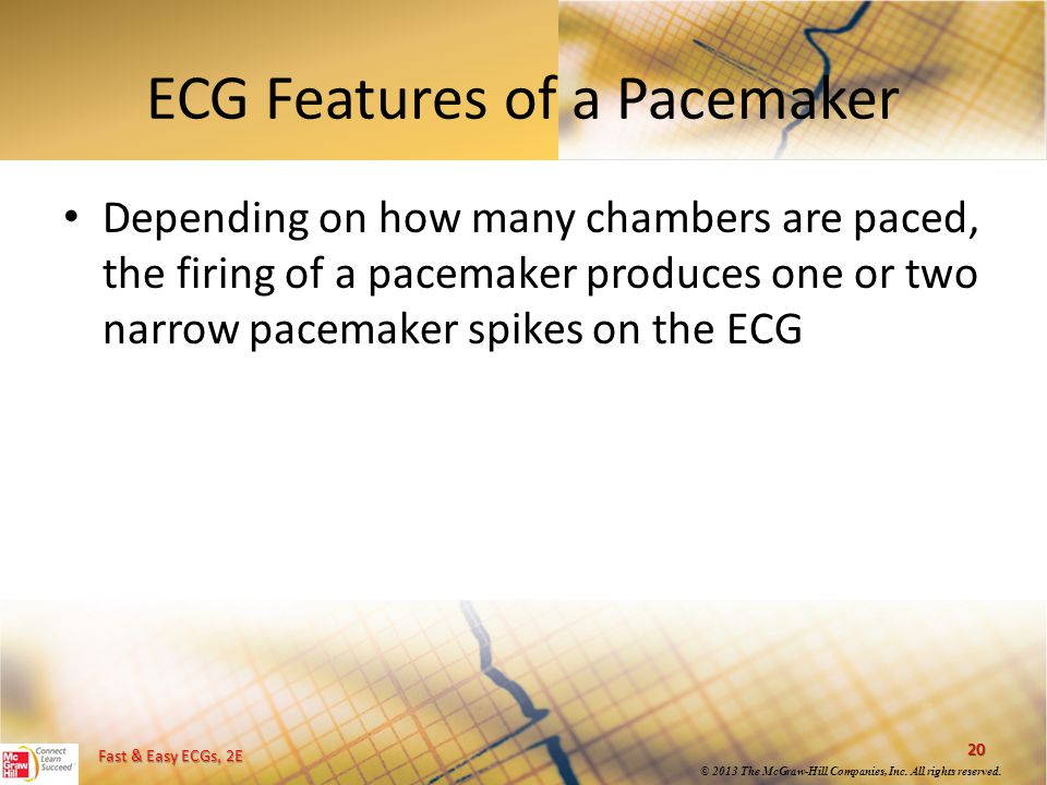 ECG Features of a Pacemaker