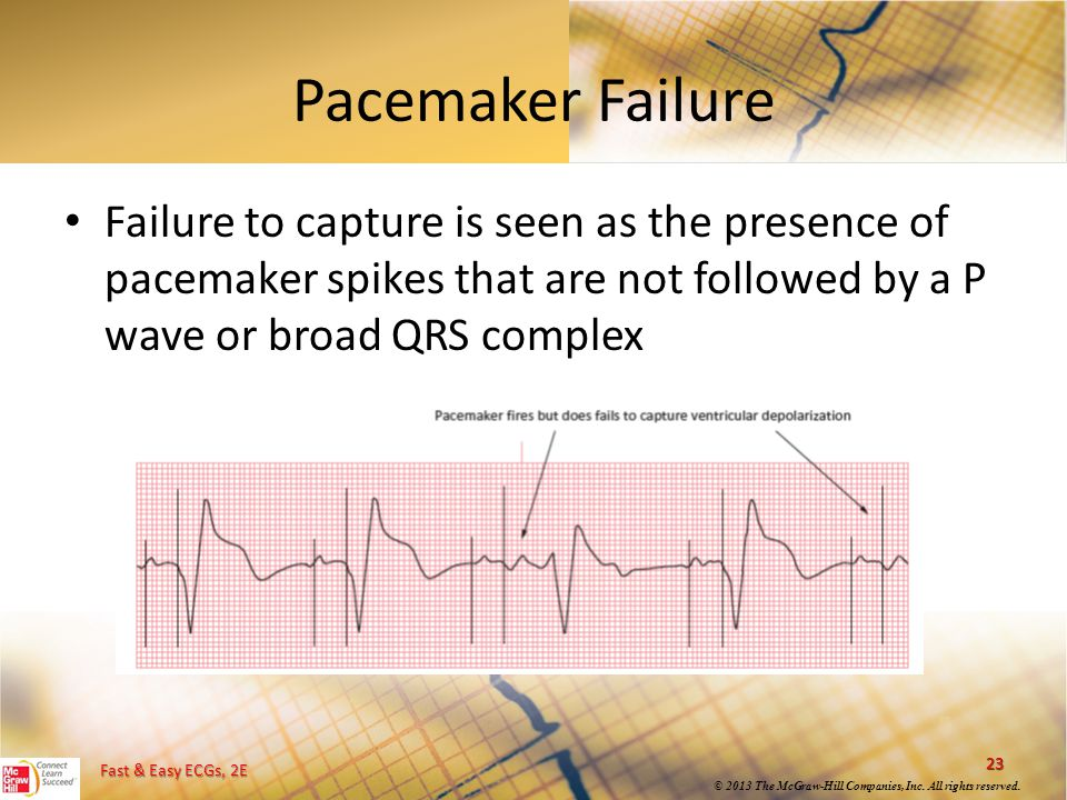 Pacemaker Failure Failure to capture is seen as the presence of pacemaker spikes that are not followed by a P wave or broad QRS complex.