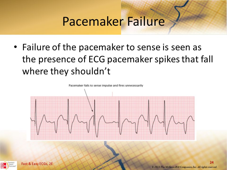 Pacemaker Failure Failure of the pacemaker to sense is seen as the presence of ECG pacemaker spikes that fall where they shouldn't.
