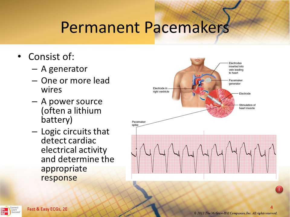 Permanent Pacemakers Consist of: A generator One or more lead wires