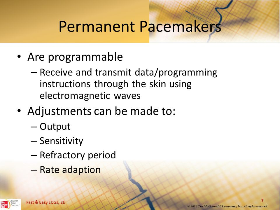 Permanent Pacemakers Are programmable Adjustments can be made to: