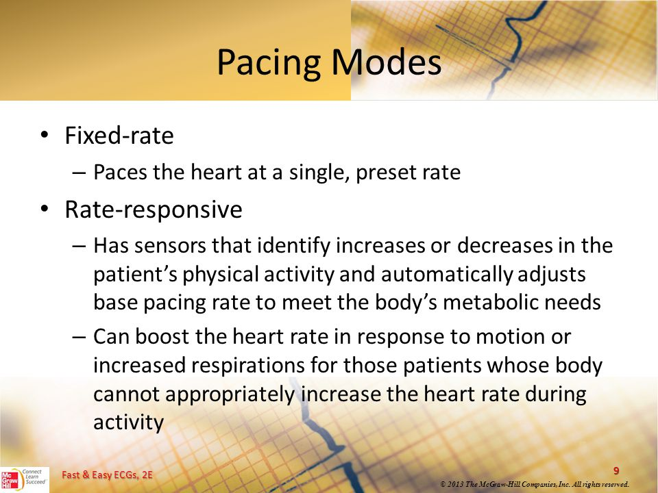 Pacing Modes Fixed-rate Rate-responsive