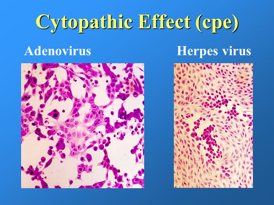 cytopathic effects as a result of infection of e coli Verocytotoxigenic escherichia coli (vtec) are a group of pathogenic e coli  bacteria that  a major food animal in nigeria, infection in cattle provides an  epidemiological causal  cytopathic effect on cultured vero cells - a line of  african green  food borne spread of vtec disease usually results from well.