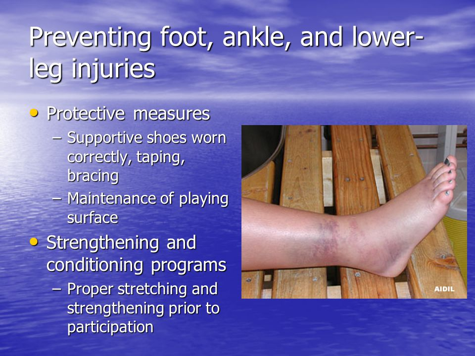 treating foot ankle leg and hand injuries The ankles and legs are common sites of swelling because of gravity's effect on  the fluids in your body however  injuries and subsequent inflammation can  also cause fluid retention and swelling we'll tell  legs arms hands ankles feet   mild edema will usually go away without any medical treatment.