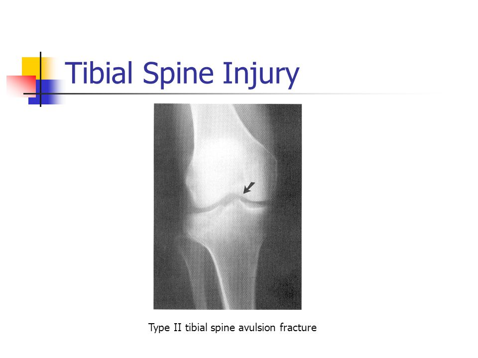 Fractures Of The Femur Tibia And Fibula Ppt Video Online Download