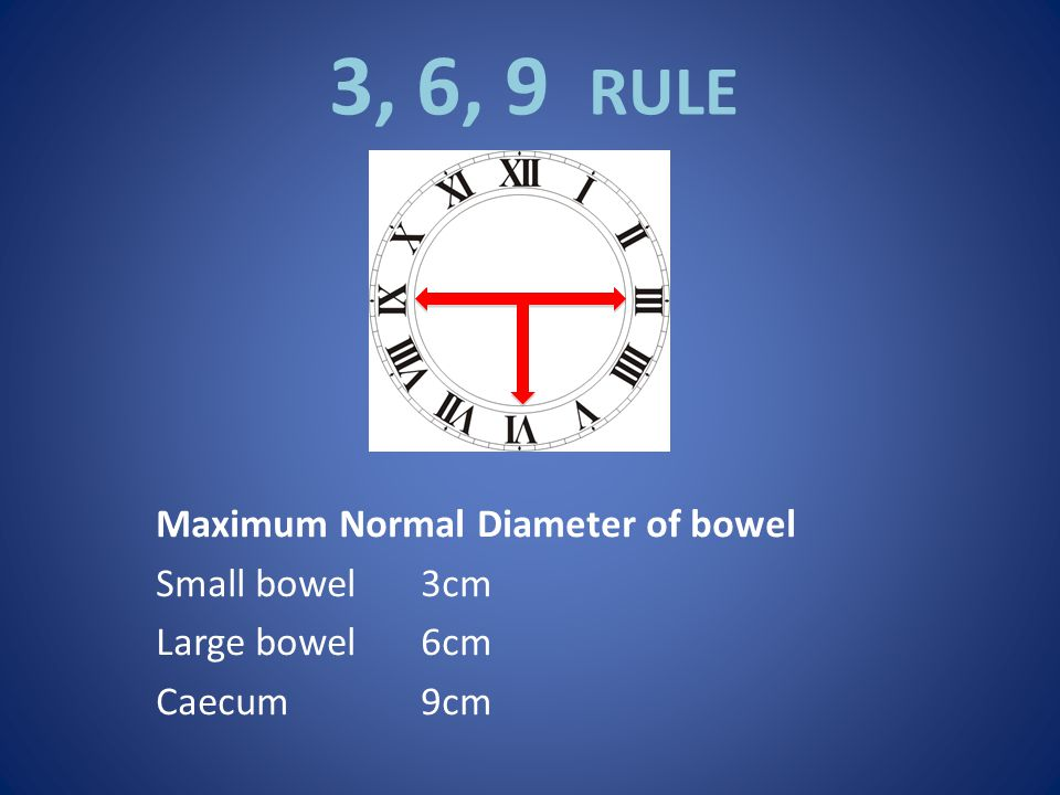 3, 6, 9 RULE Maximum Normal Diameter of bowel Small bowel 3cm