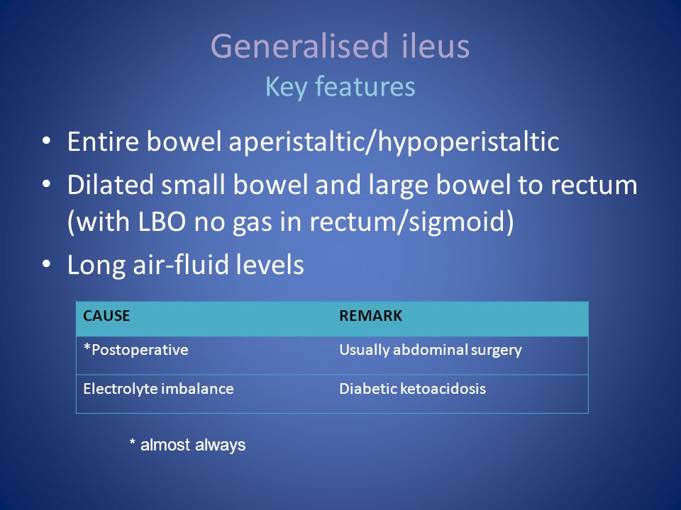Generalised ileus Key features