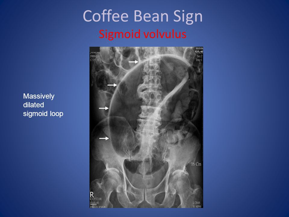 Coffee Bean Sign Sigmoid volvulus