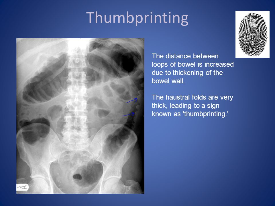 Thumbprinting The distance between loops of bowel is increased due to thickening of the bowel wall.