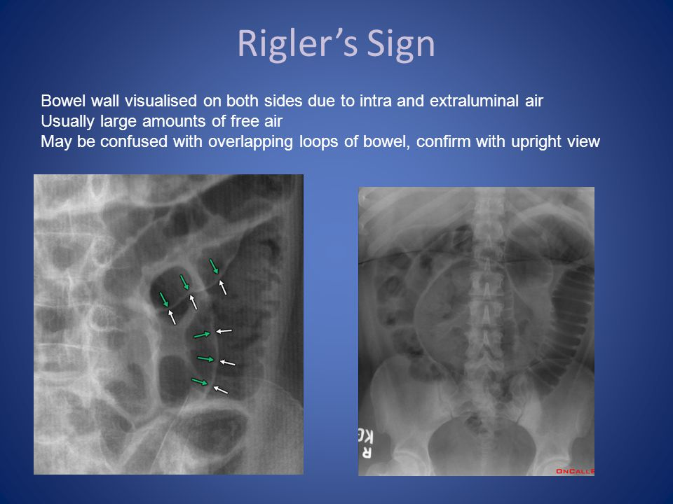 Rigler's Sign Bowel wall visualised on both sides due to intra and extraluminal air. Usually large amounts of free air.
