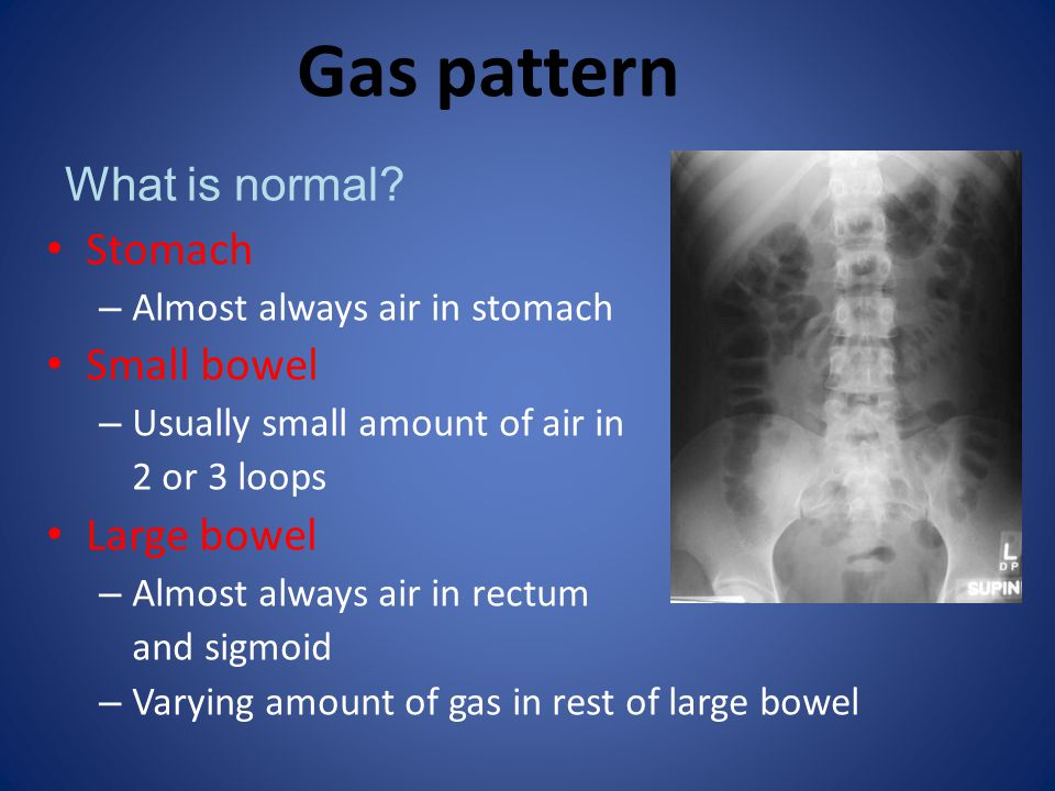 Gas pattern What is normal Stomach Small bowel Large bowel