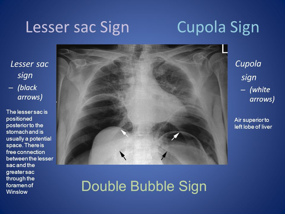Lesser sac Sign Cupola Sign