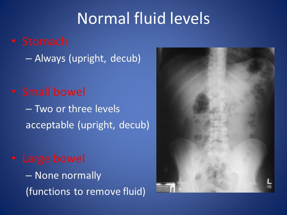 Normal fluid levels Stomach Small bowel Large bowel