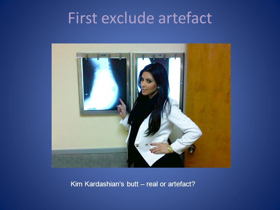 First exclude artefact