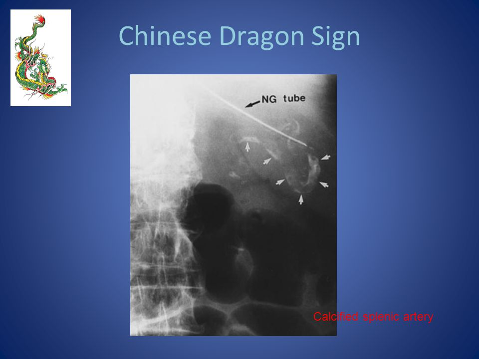 Chinese Dragon Sign Calcified splenic artery
