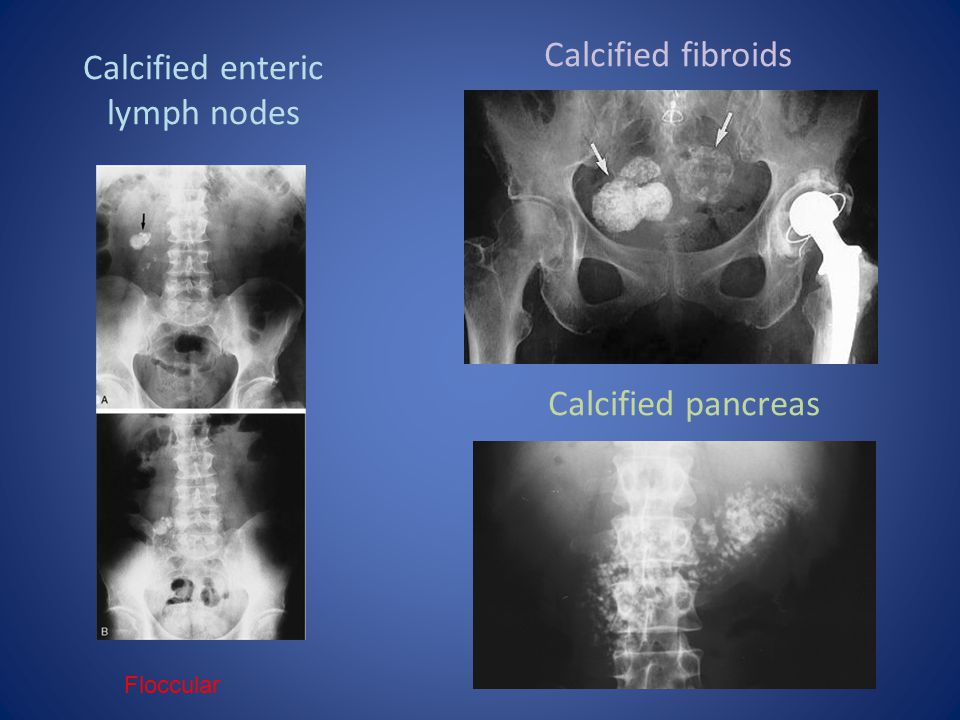 Calcified enteric lymph nodes
