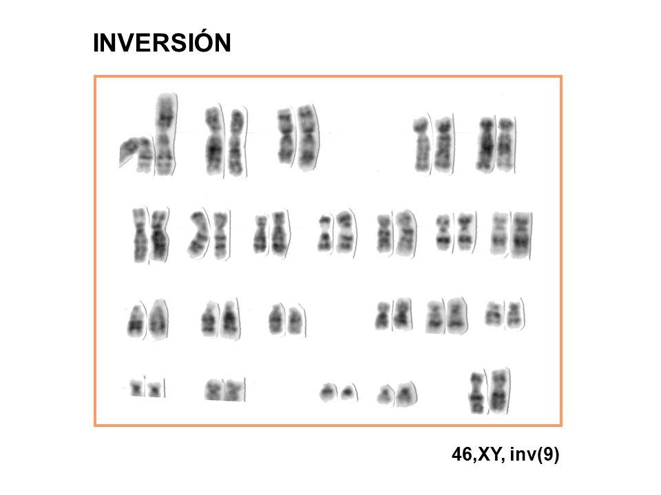 INVERSIÓN 46,XY, inv(9)