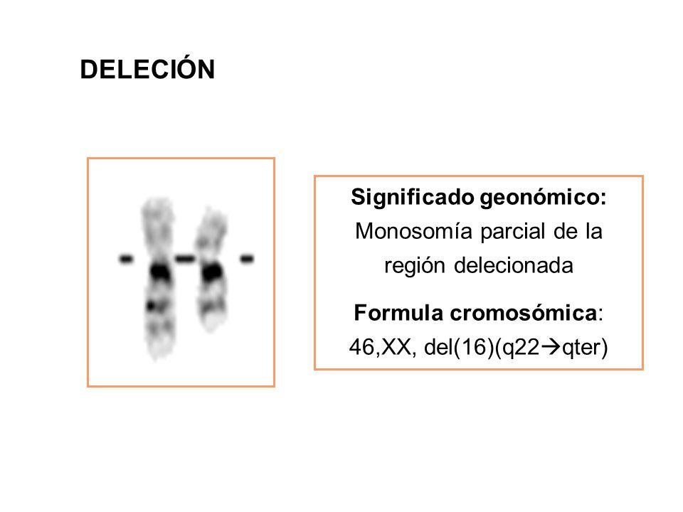 DELECIÓN Significado geonómico: Monosomía parcial de la región delecionada.