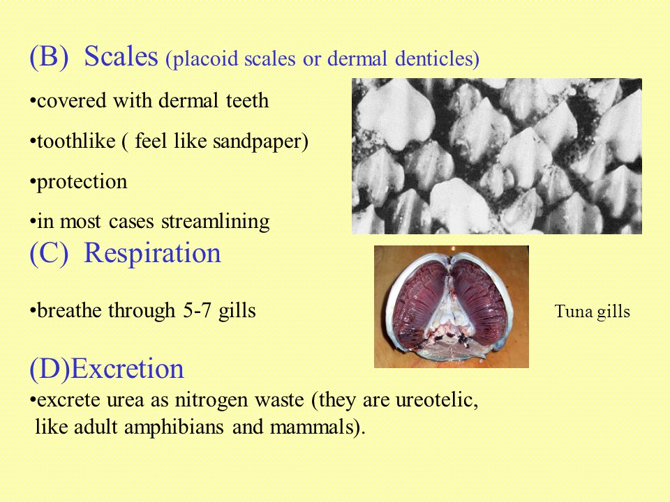 (B) Scales (placoid scales or dermal denticles)