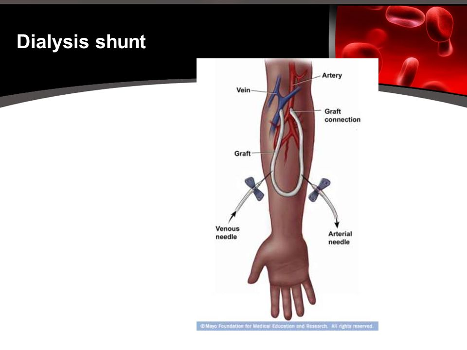Dialysis Shunts Pictures 3