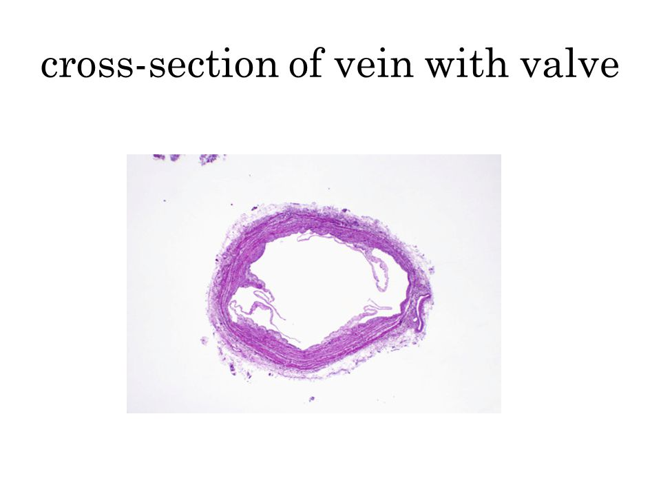 cross-section of vein with valve