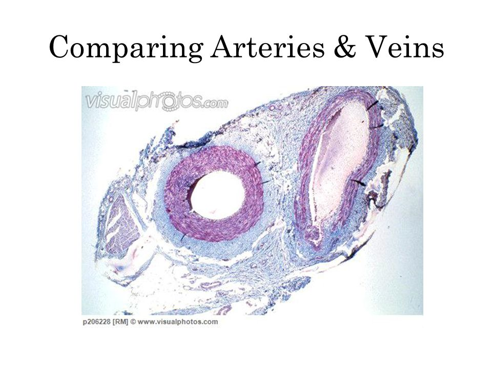 Comparing Arteries & Veins